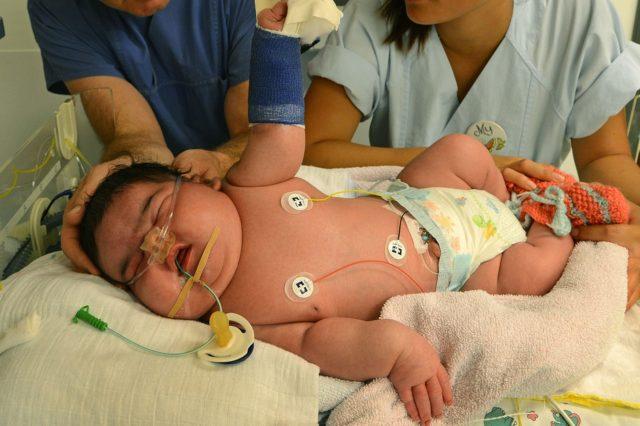 causas bebé diabetes gestacional