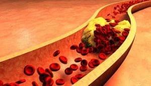 5 puntos clave para controlar triglicéridos en sangre